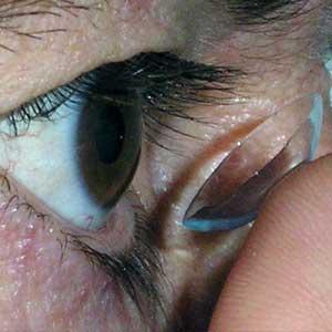 contactologia-central-optica-muro-alcoi